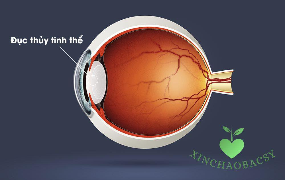 9 nguyên nhân đục thủy tinh thể cần nắm rõ để bảo vệ thị lực